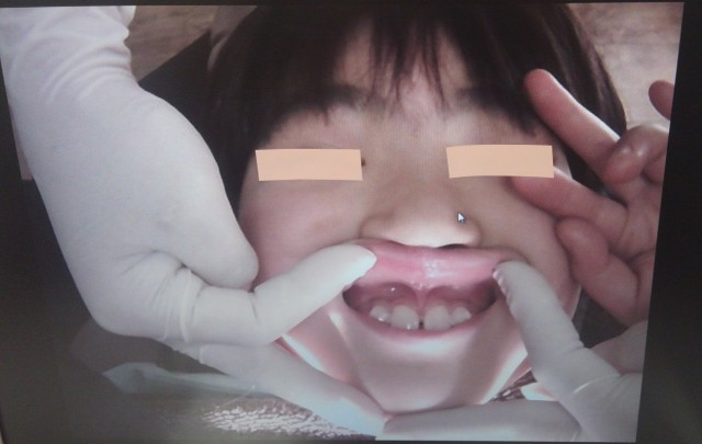小 切れ た 帯 上唇 子供の上唇小帯(スジ)は切ってしまった方が良い?